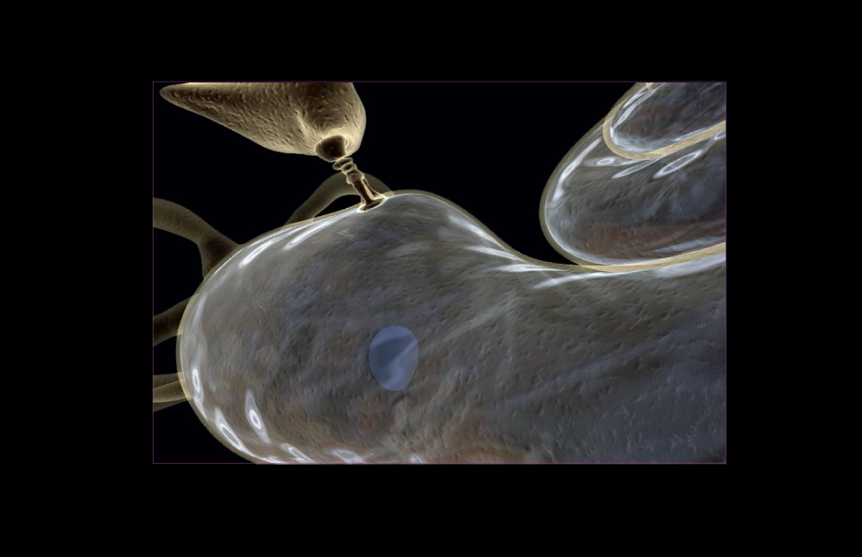 StapesOnCochlea_2_960x621